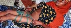 Bimbe infibulate: genitori assolti «perché il fatto non costituisce reato»