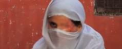 Donne sfigurate: Documentario da Oscar Saving Face